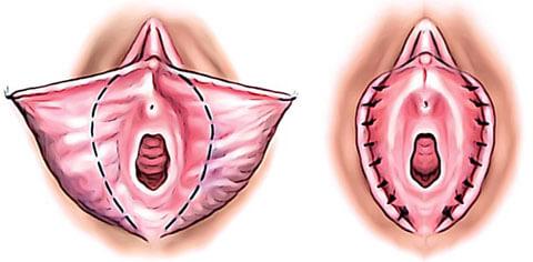 Genital Estetik - Vajina Estetiği - Vajina Daraltma - Vajinoplasti - Labioplasti